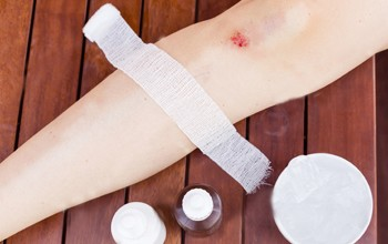 How to treat cuts and bruises